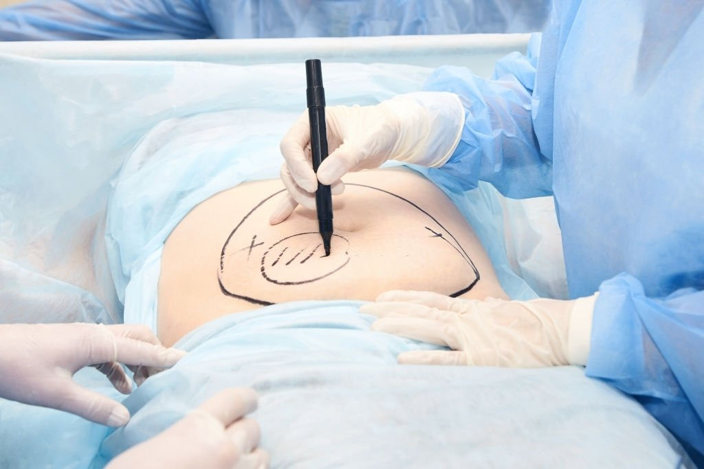 Surgery In The Womb