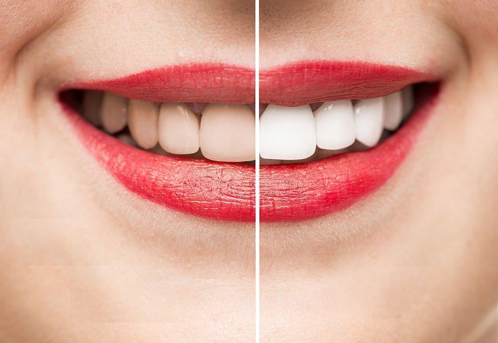 White Teeth Getting Dirty