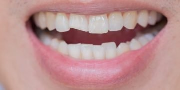 Broken Tooth – Dream Meaning and Symbolism 12
