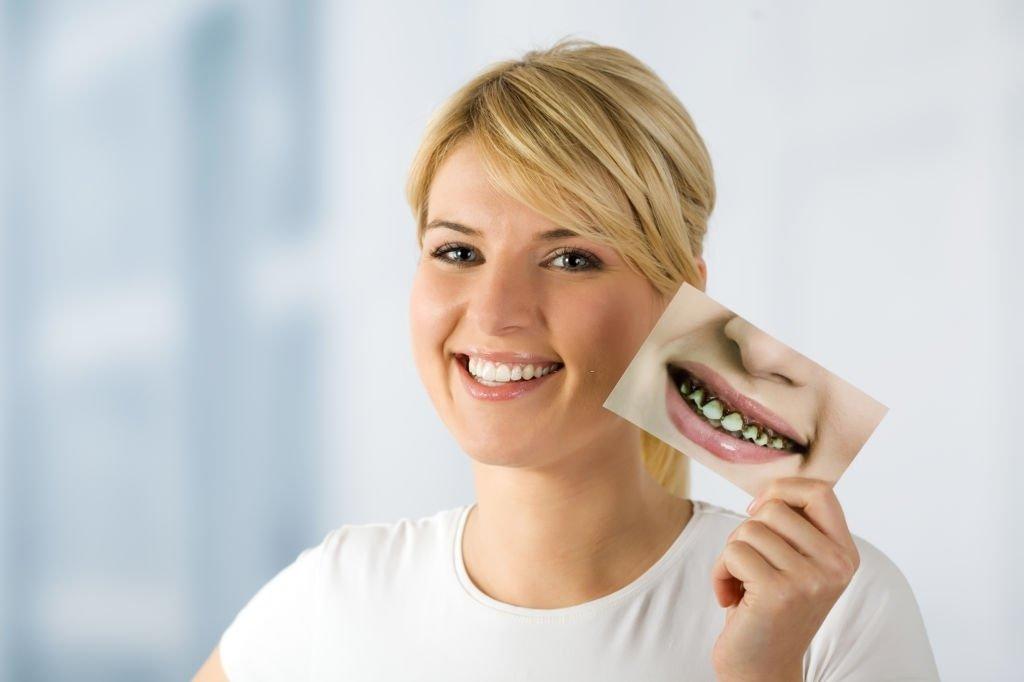 Decayed Teeth Turning White