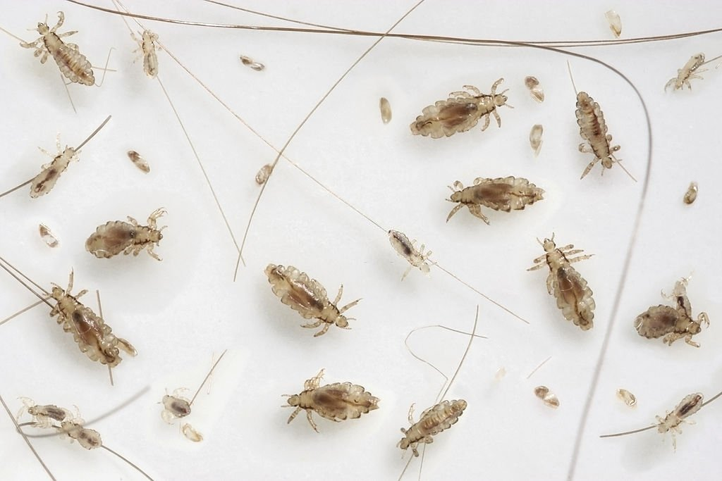 Kills Lice