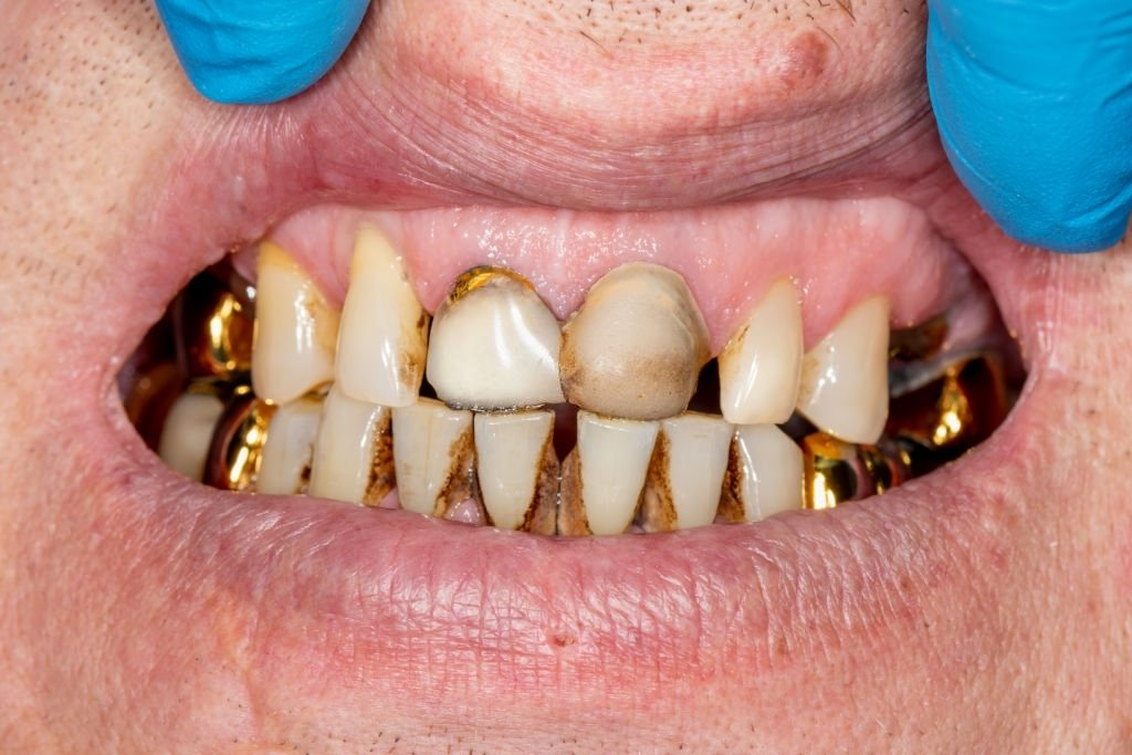 You Have A Decayed Tooth